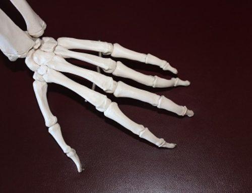 Artróza aArtritida aneb když už tělo dalo poslední varovné signály